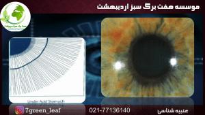 2.mp4 001363762 300x169 - آموزش عنبیه شناسی مقدماتی